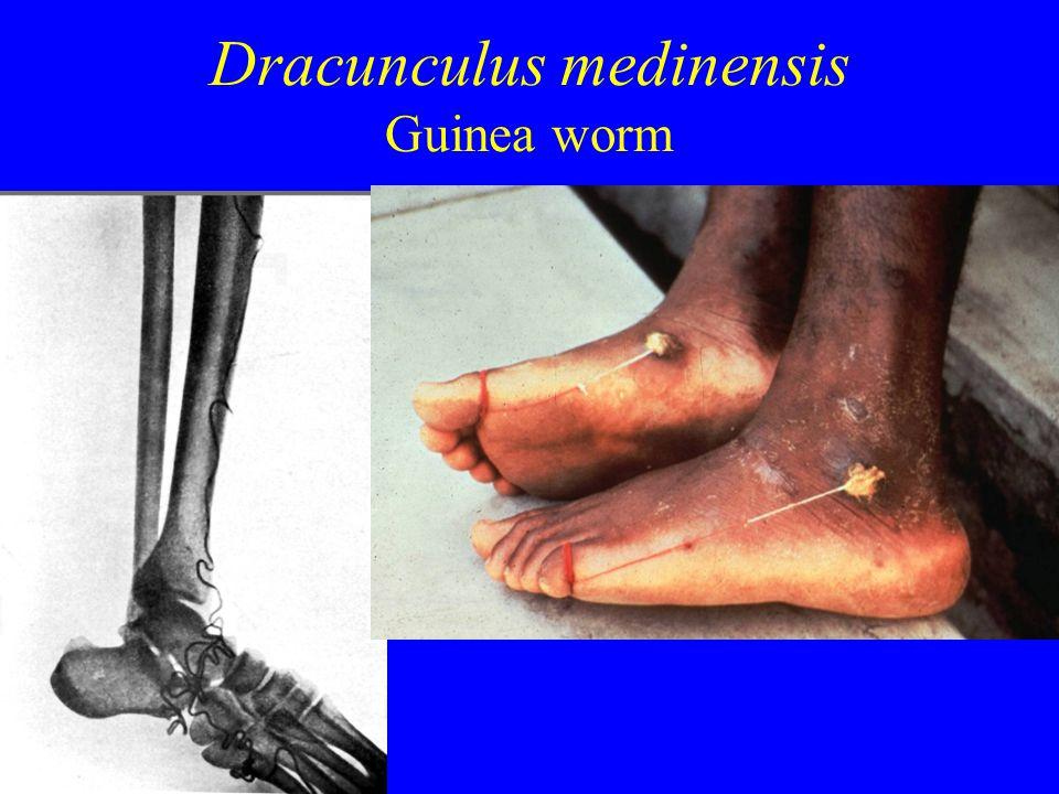 Dracunculus medinensis Guinea worm