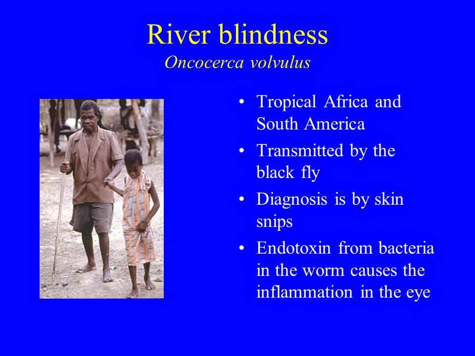 River blindness Oncocerca volvulus Tropical Africa and South America Transmitted by the black fly Diagnosis is by skin snips Endotoxin from bacteria in the worm causes the inflammation in the eye