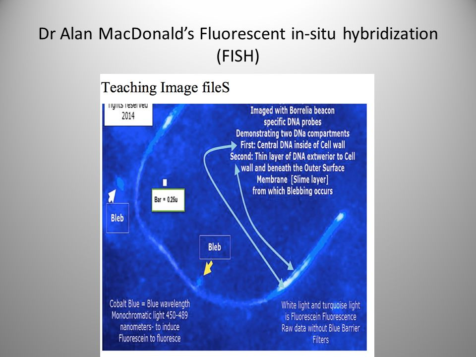 Dr Alan MacDonald's Fluorescent in-situ hybridization (FISH)