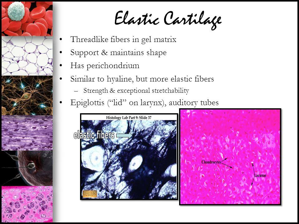 Elastic Cartilage Threadlike fibers in gel matrix Support & maintains shape Has perichondrium Similar to hyaline, but more elastic fibers –Strength &