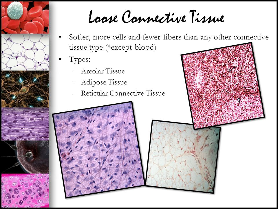 Loose Connective Tissue Softer, more cells and fewer fibers than any other connective tissue type (*except blood) Types: –Areolar Tissue –Adipose Tiss