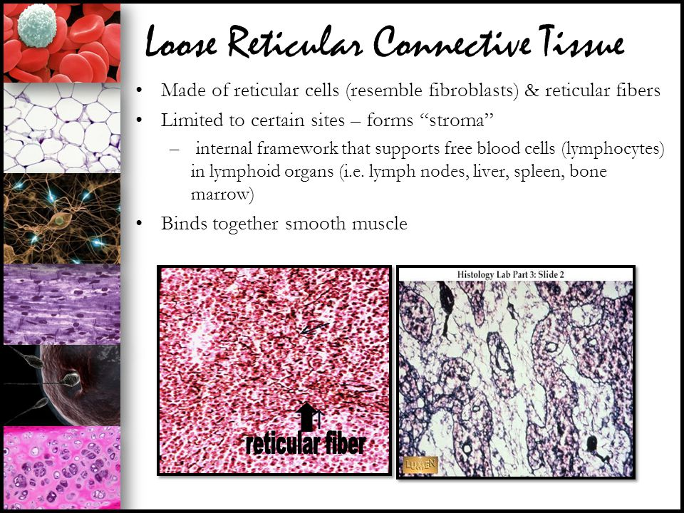 """Loose Reticular Connective Tissue Made of reticular cells (resemble fibroblasts) & reticular fibers Limited to certain sites – forms """"stroma"""" – intern"""