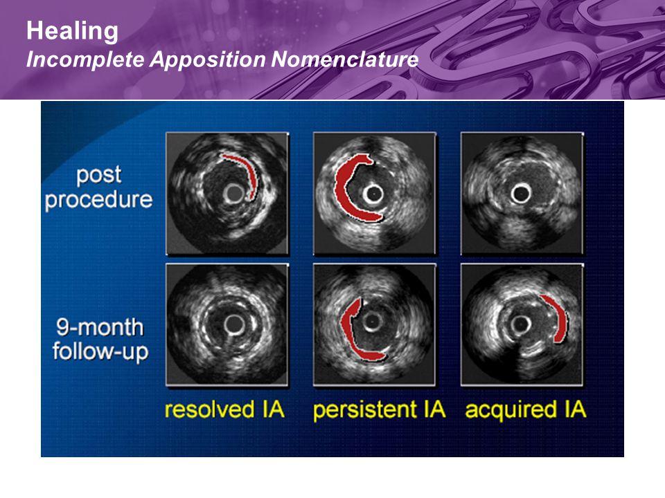 Healing Incomplete Apposition Nomenclature