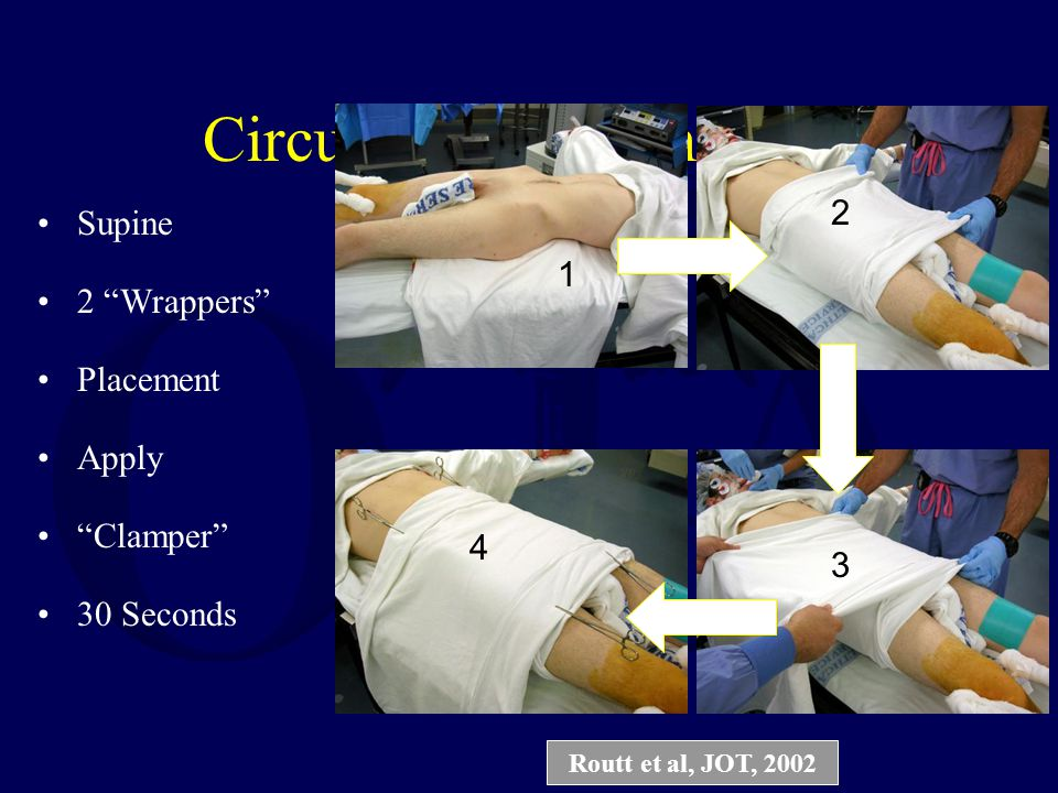 "Circumferential Sheeting Supine 2 ""Wrappers"" Placement Apply ""Clamper"" 30 Seconds 1 2 3 4 Routt et al, JOT, 2002"