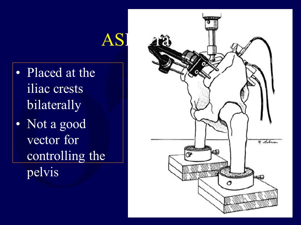 ASIS Frames Placed at the iliac crests bilaterally Not a good vector for controlling the pelvis