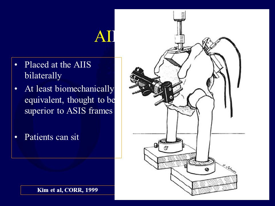 Kim et al, CORR, 1999 AIIS Frames Placed at the AIIS bilaterally At least biomechanically equivalent, thought to be superior to ASIS frames Patients c