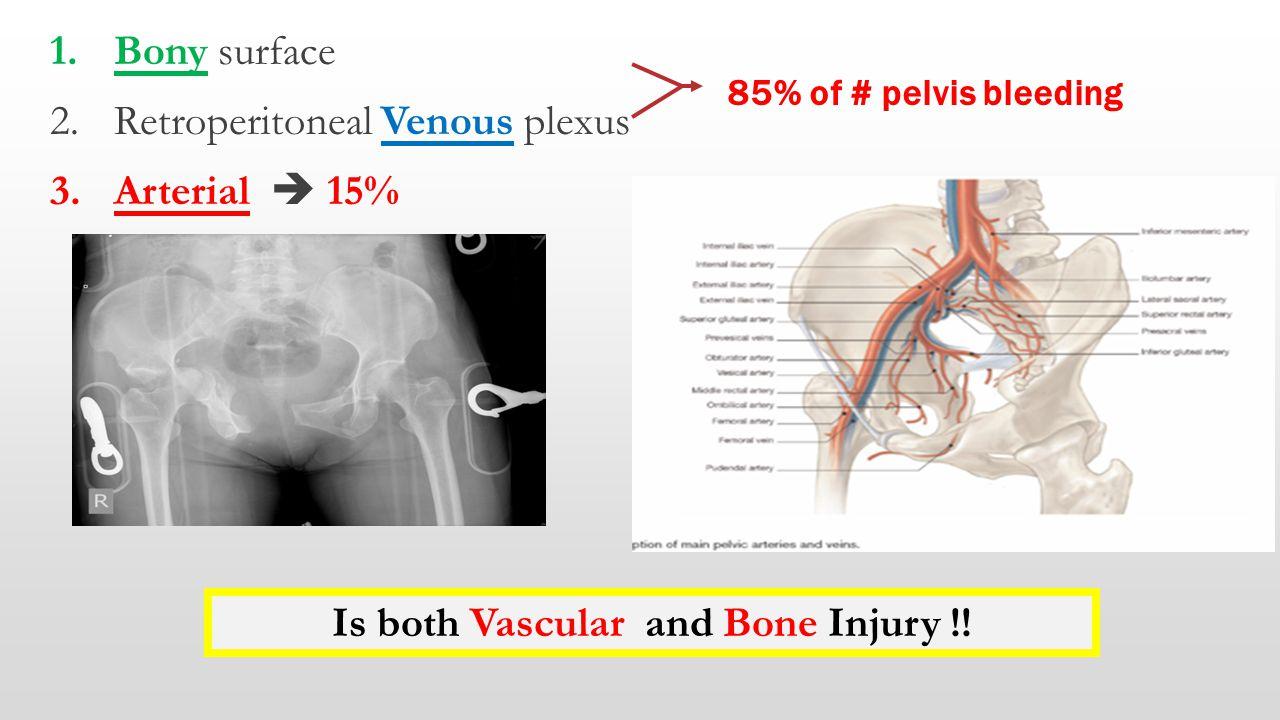 1.Bony surface 2.Retroperitoneal Venous plexus 3.Arterial  15% 85% of # pelvis bleeding Is both Vascular and Bone Injury !!