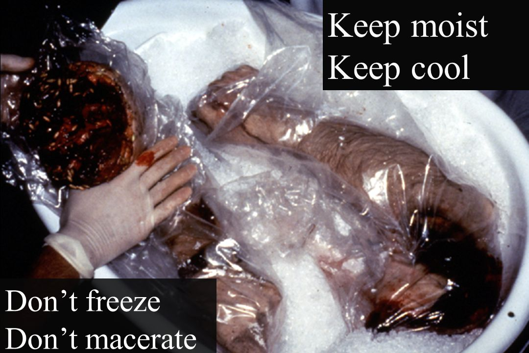 Keep moist Keep cool Don't freeze Don't macerate