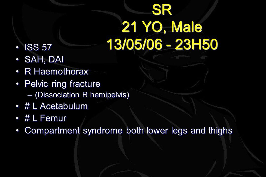 SR 21 YO, Male 13/05/06 - 23H50 ISS 57ISS 57 SAH, DAISAH, DAI R HaemothoraxR Haemothorax Pelvic ring fracturePelvic ring fracture –(Dissociation R hemipelvis) # L Acetabulum# L Acetabulum # L Femur# L Femur Compartment syndrome both lower legs and thighsCompartment syndrome both lower legs and thighs