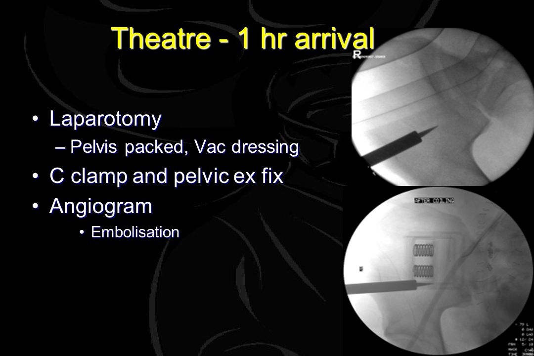 Theatre - 1 hr arrival LaparotomyLaparotomy –Pelvis packed, Vac dressing C clamp and pelvic ex fixC clamp and pelvic ex fix AngiogramAngiogram EmbolisationEmbolisation