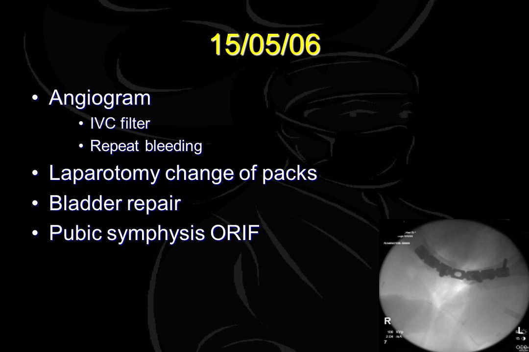 15/05/06 AngiogramAngiogram IVC filterIVC filter Repeat bleedingRepeat bleeding Laparotomy change of packsLaparotomy change of packs Bladder repairBladder repair Pubic symphysis ORIFPubic symphysis ORIF