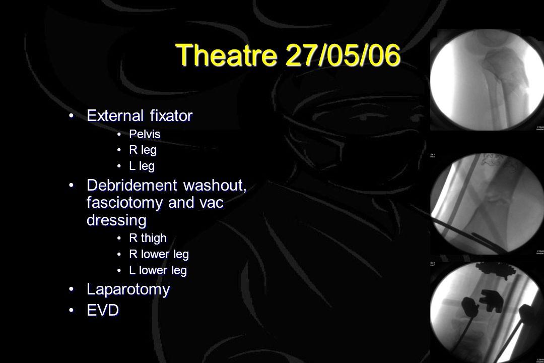 Theatre 27/05/06 External fixatorExternal fixator PelvisPelvis R legR leg L legL leg Debridement washout, fasciotomy and vac dressingDebridement washout, fasciotomy and vac dressing R thighR thigh R lower legR lower leg L lower legL lower leg LaparotomyLaparotomy EVDEVD