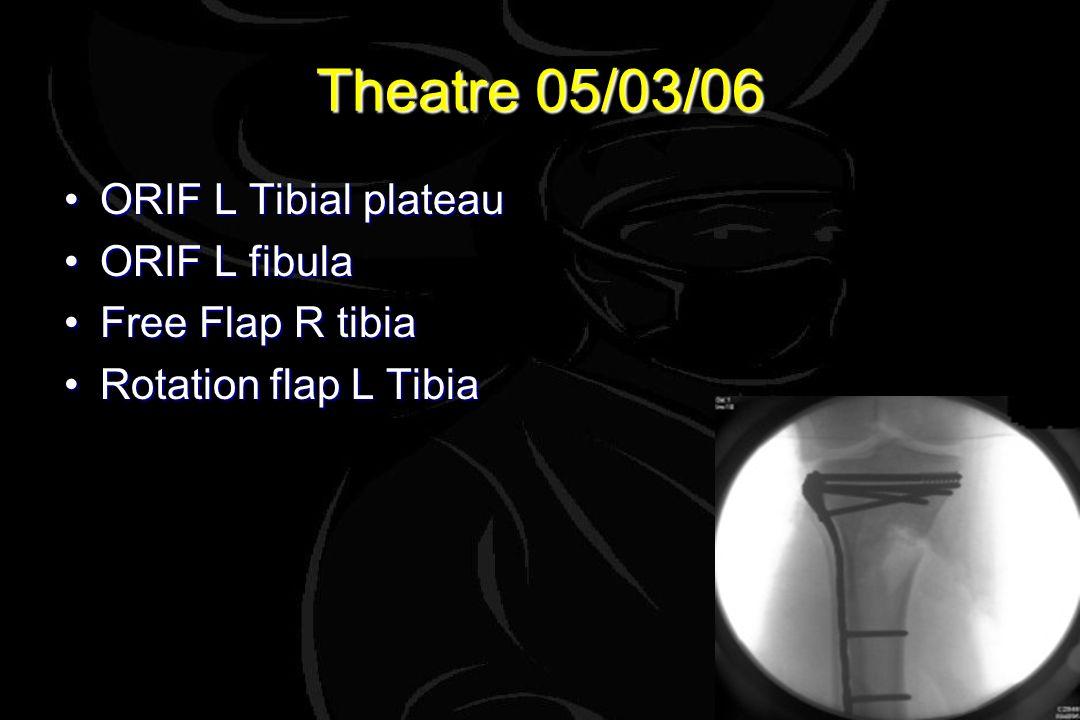 Theatre 05/03/06 ORIF L Tibial plateauORIF L Tibial plateau ORIF L fibulaORIF L fibula Free Flap R tibiaFree Flap R tibia Rotation flap L TibiaRotation flap L Tibia
