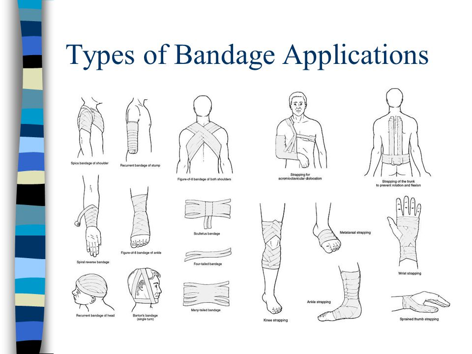 Types of Bandage Applications