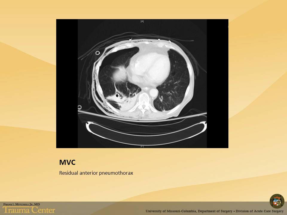 MVC Residual anterior pneumothorax