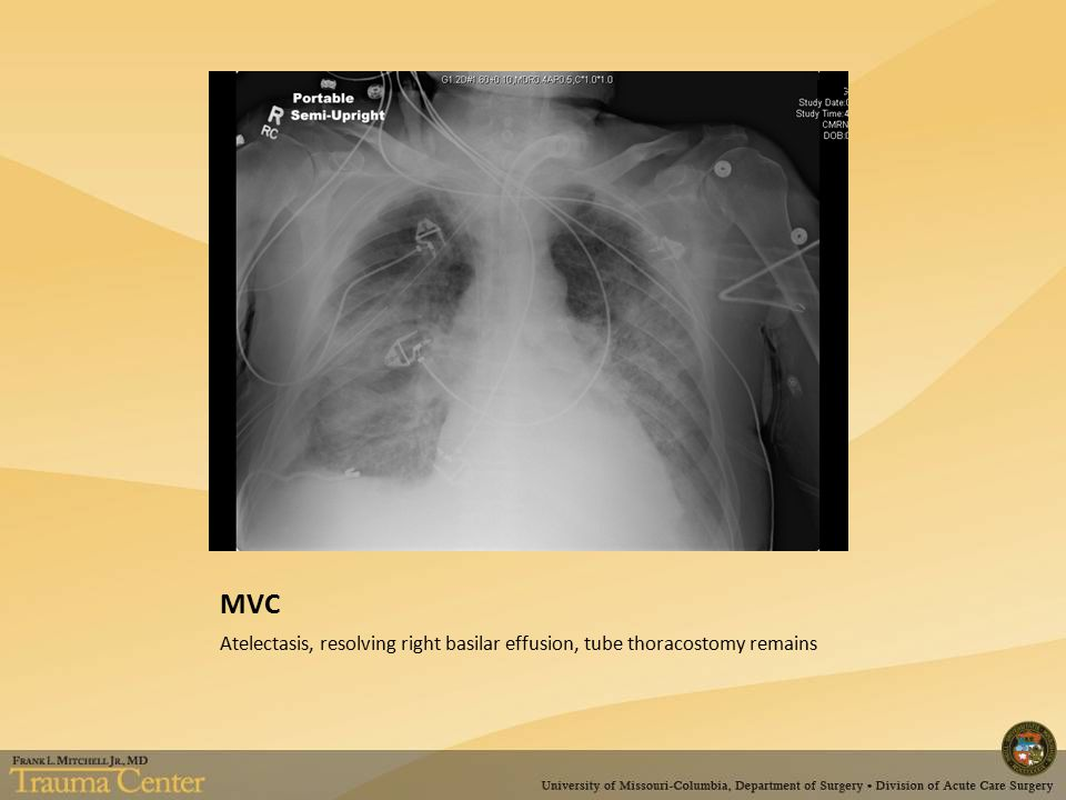 MVC Atelectasis, resolving right basilar effusion, tube thoracostomy remains