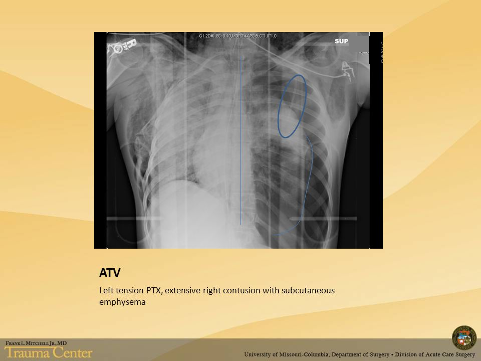 ATV Left tension PTX, extensive right contusion with subcutaneous emphysema
