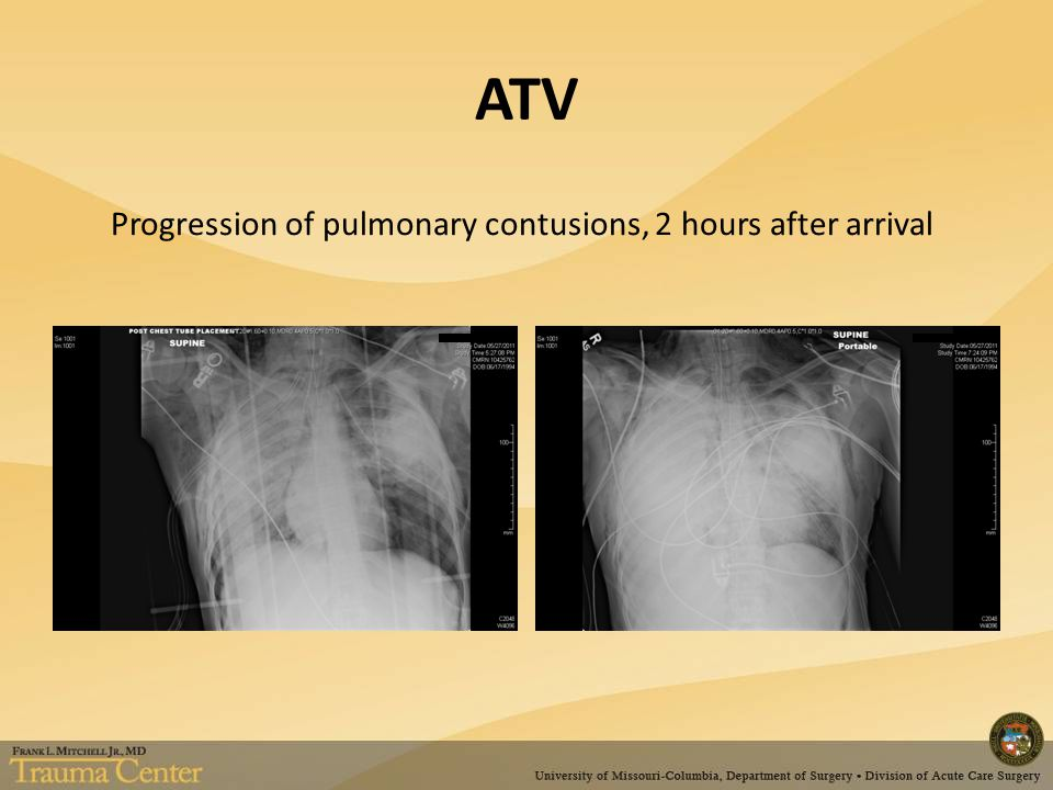 ATV Progression of pulmonary contusions, 2 hours after arrival