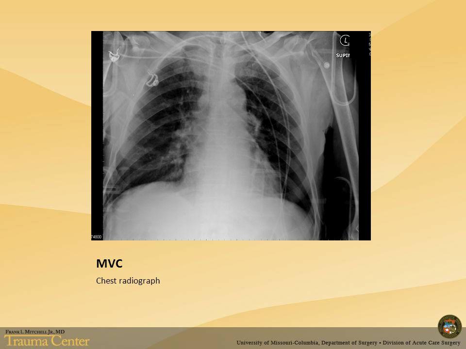 MVC Pelvic radiograph