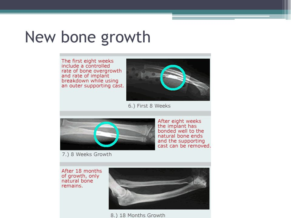 New bone growth