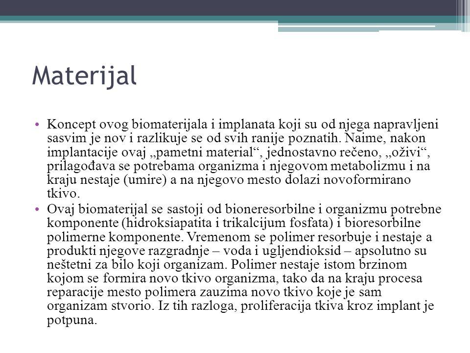 Materijal Koncept ovog biomaterijala i implanata koji su od njega napravljeni sasvim je nov i razlikuje se od svih ranije poznatih.