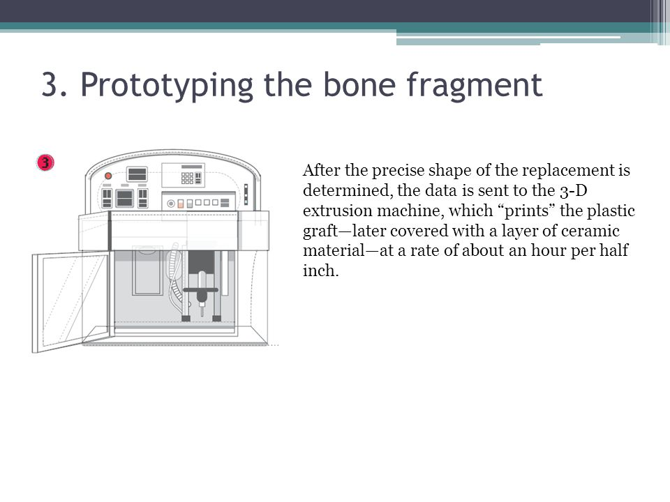 """3. Prototyping the bone fragment After the precise shape of the replacement is determined, the data is sent to the 3-D extrusion machine, which """"print"""