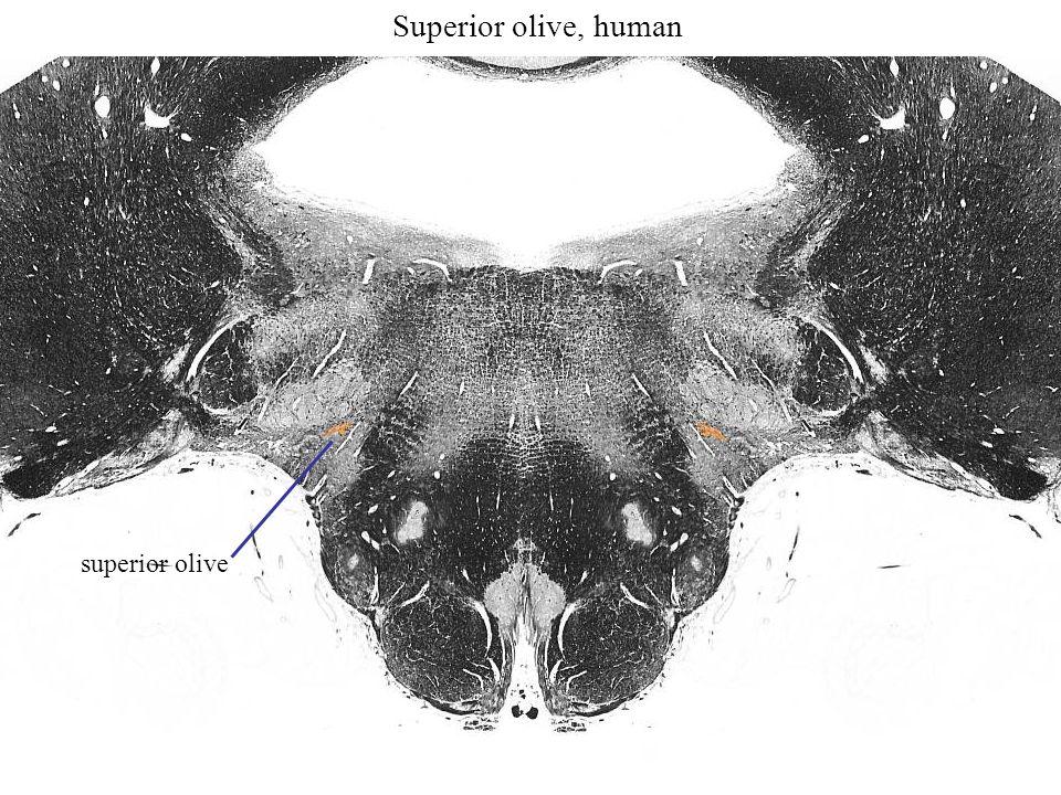 Superior olive, human superior olive