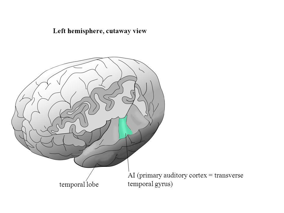 Left hemisphere, cutaway view temporal lobe AI (primary auditory cortex = transverse temporal gyrus)