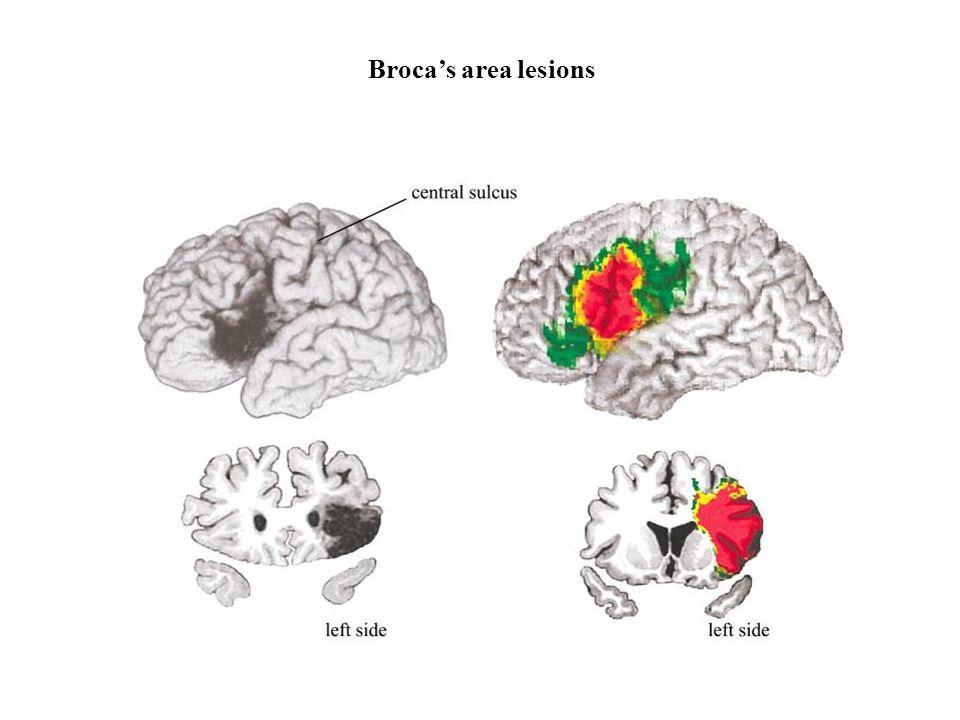 Broca's area lesions