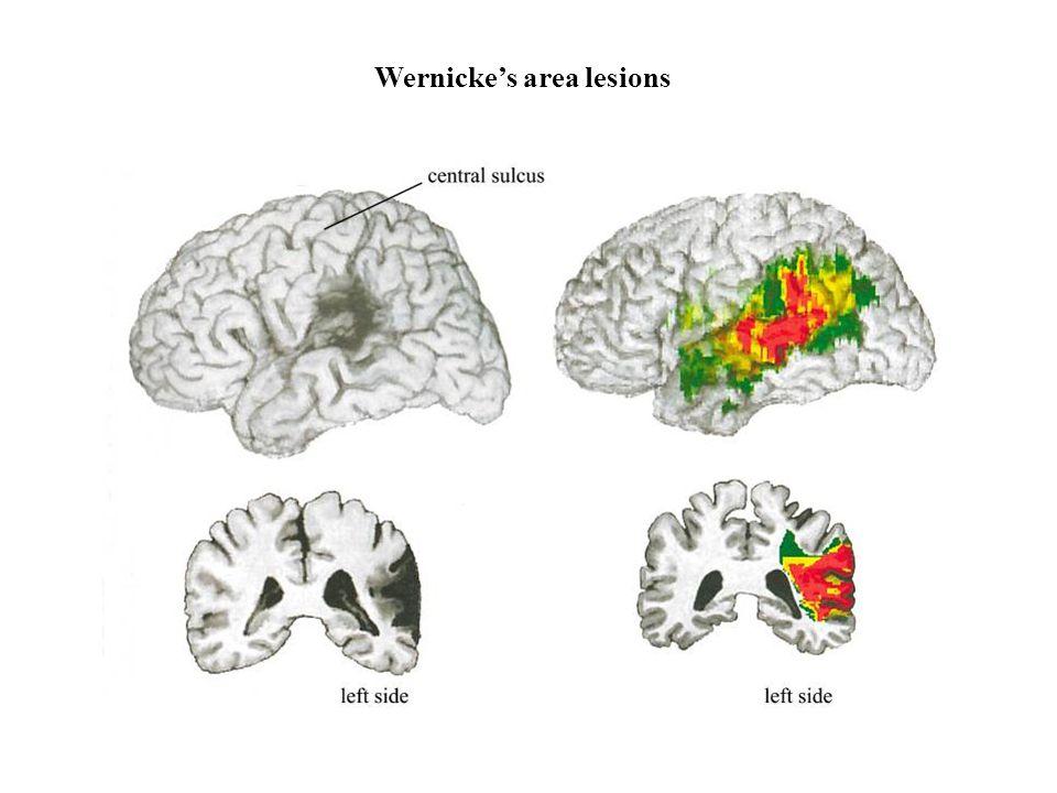 Wernicke's area lesions