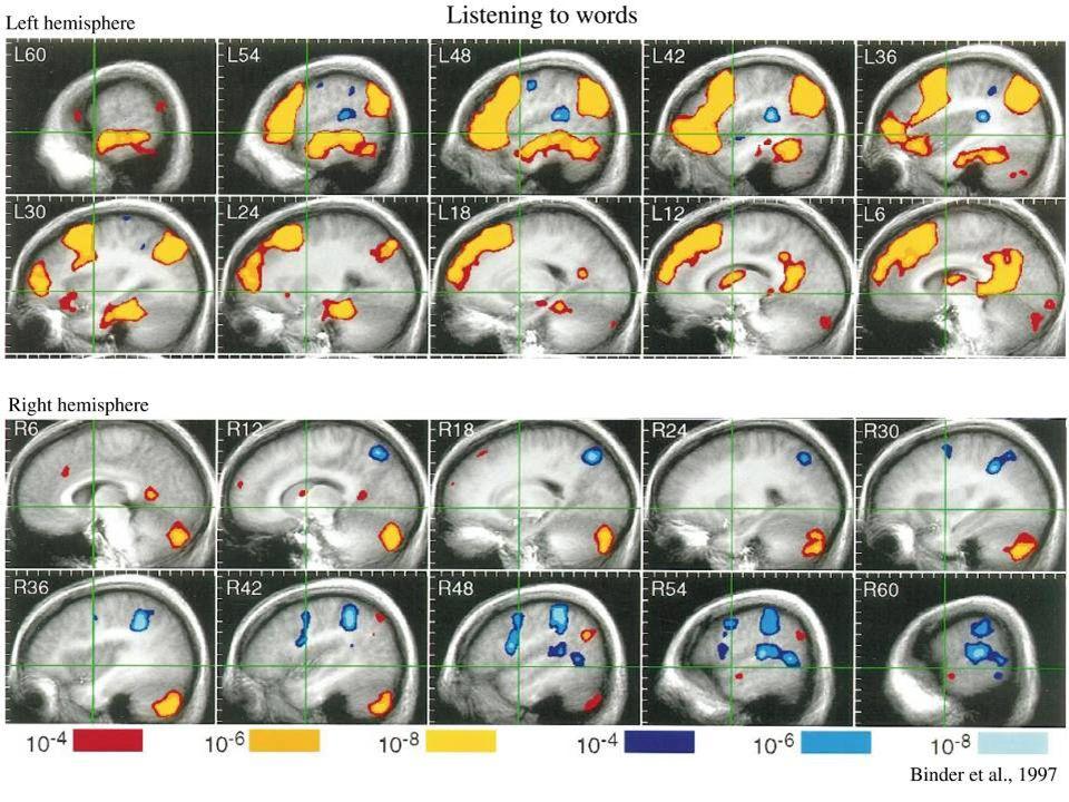 fMRI responses to language task
