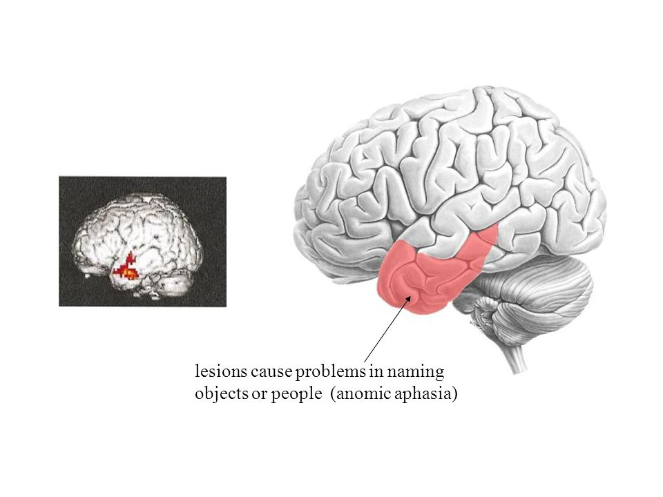 lesions cause problems in naming objects or people (anomic aphasia)