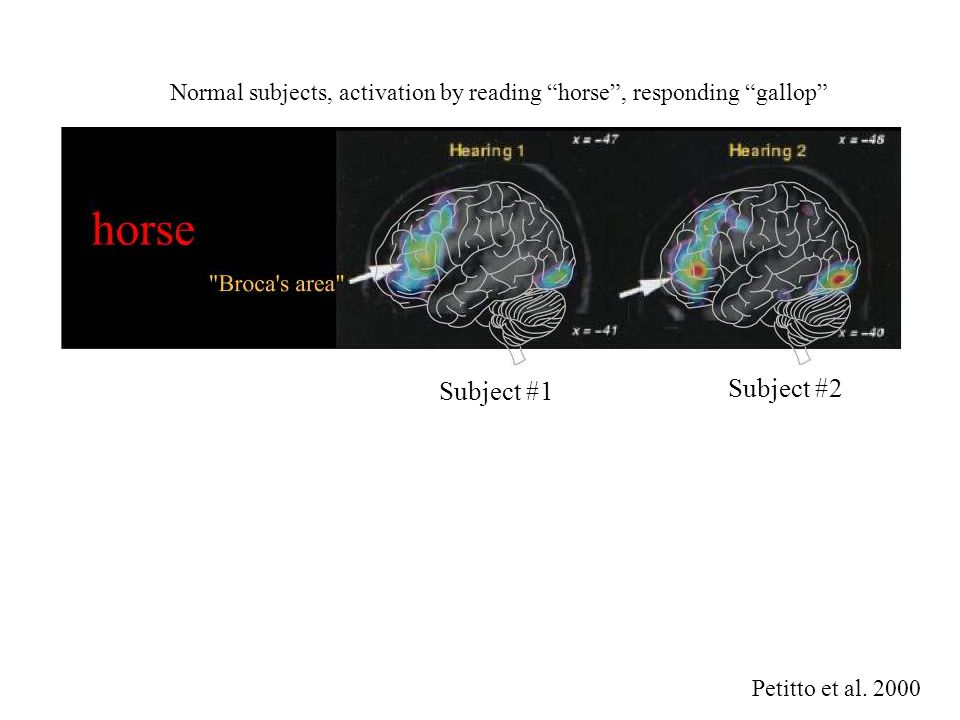 Normal subjects, activation by reading horse , responding gallop Petitto et al.