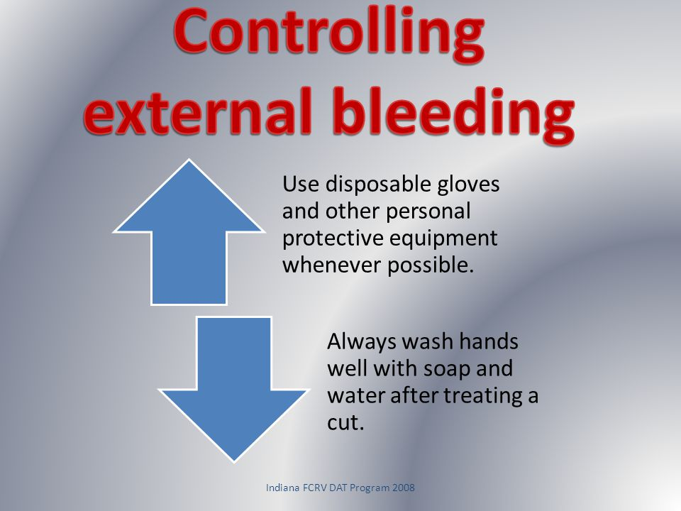 Indiana FCRV DAT Program 2008 Use disposable gloves and other personal protective equipment whenever possible. Always wash hands well with soap and wa