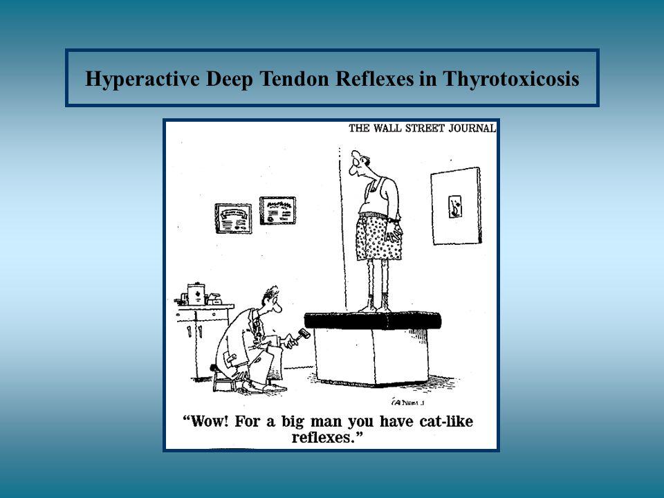 Hyperactive Deep Tendon Reflexes in Thyrotoxicosis