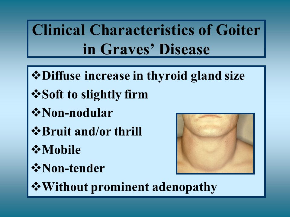 Clinical Characteristics of Goiter in Graves' Disease vDiffuse increase in thyroid gland size vSoft to slightly firm vNon-nodular vBruit and/or thrill vMobile vNon-tender vWithout prominent adenopathy