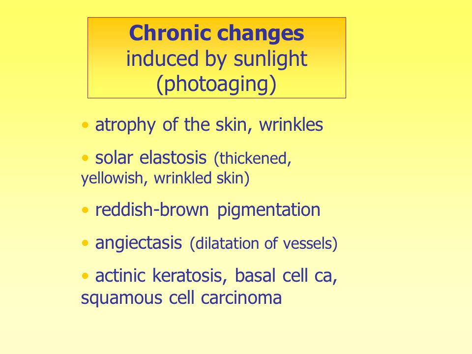 atrophy of the skin, wrinkles solar elastosis (thickened, yellowish, wrinkled skin) reddish-brown pigmentation angiectasis (dilatation of vessels) actinic keratosis, basal cell ca, squamous cell carcinoma Chronic changes induced by sunlight (photoaging)