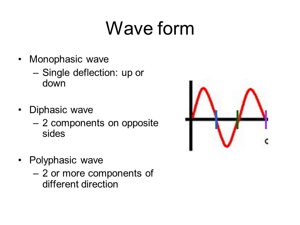 Wave form Monophasic wave –Single deflection: up or down Diphasic wave –2 components on opposite sides Polyphasic wave –2 or more components of different direction