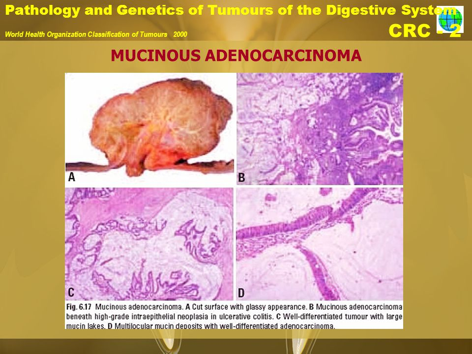 Pathology and Genetics of Tumours of the Digestive System World Health Organization Classification of Tumours 2000 CRC - 2 MUCINOUS ADENOCARCINOMA