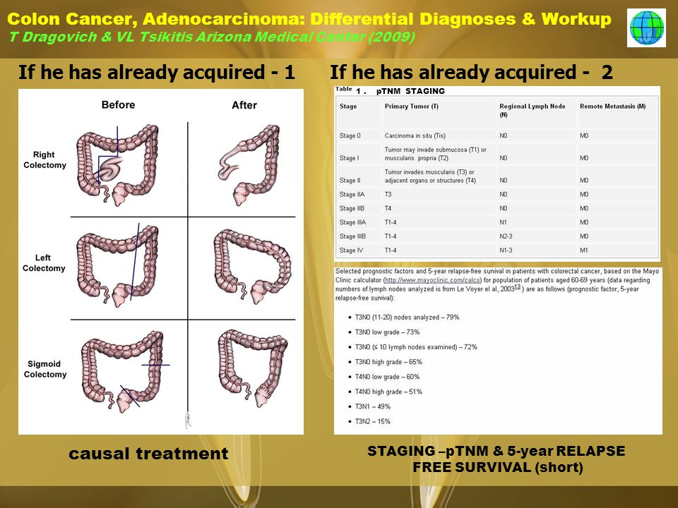 Colon Cancer, Adenocarcinoma: Differential Diagnoses & Workup T Dragovich & VL Tsikitis Arizona Medical Center (2009) If he has already acquired - 1If he has already acquired - 2 causal treatment STAGING –pTNM & 5-year RELAPSE FREE SURVIVAL (short) 1.