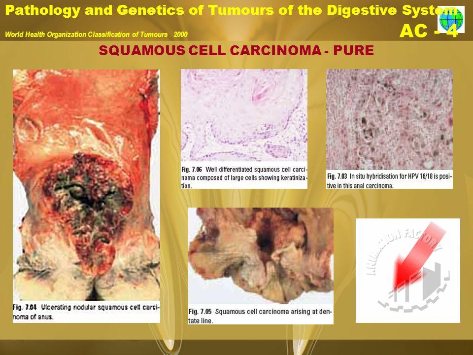 Pathology and Genetics of Tumours of the Digestive System World Health Organization Classification of Tumours 2000 AC - 4 SQUAMOUS CELL CARCINOMA - PU