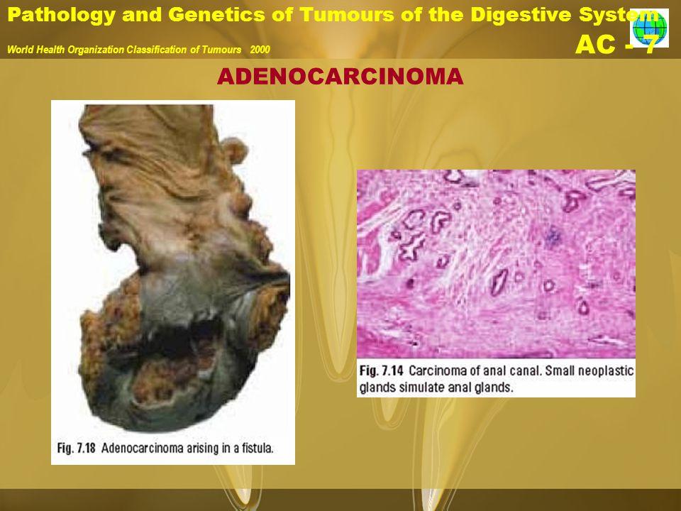 Pathology and Genetics of Tumours of the Digestive System World Health Organization Classification of Tumours 2000 AC - 7 ADENOCARCINOMA
