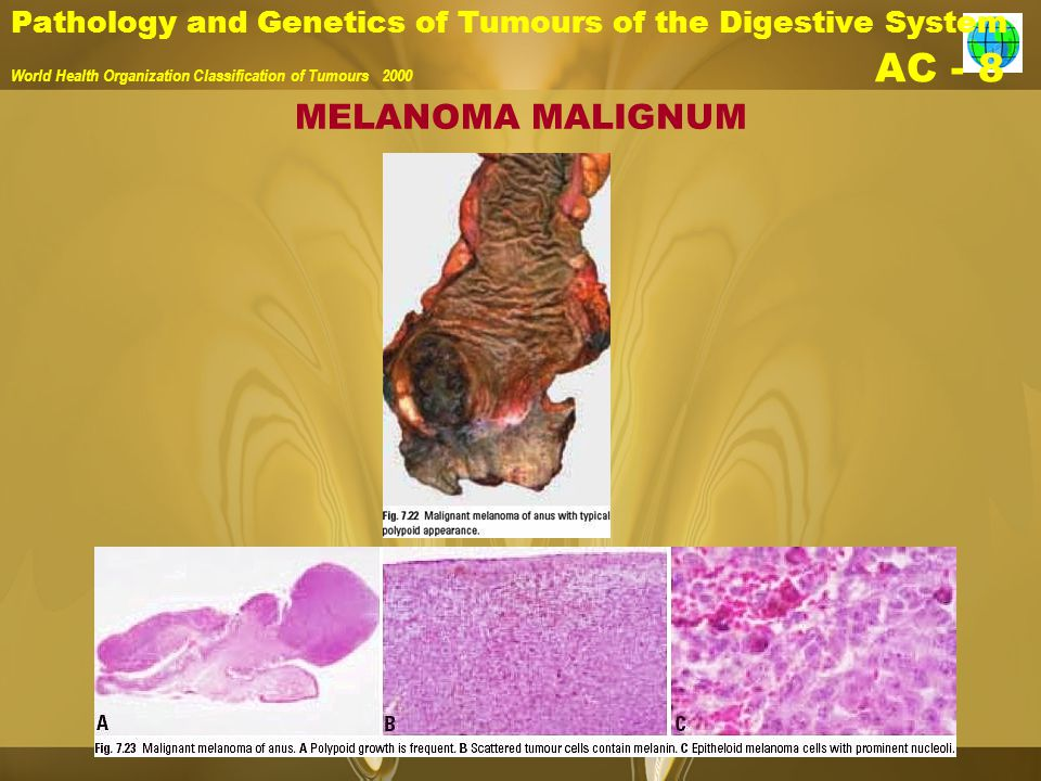 Pathology and Genetics of Tumours of the Digestive System World Health Organization Classification of Tumours 2000 AC - 8 MELANOMA MALIGNUM
