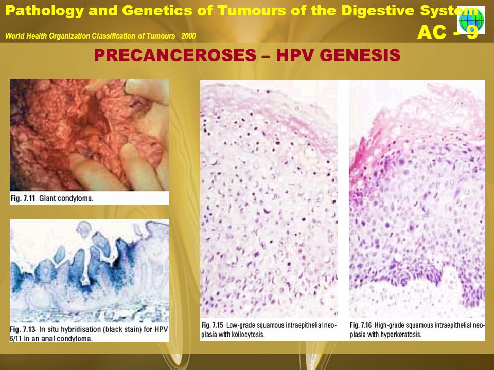 Pathology and Genetics of Tumours of the Digestive System World Health Organization Classification of Tumours 2000 AC - 9 PRECANCEROSES – HPV GENESIS