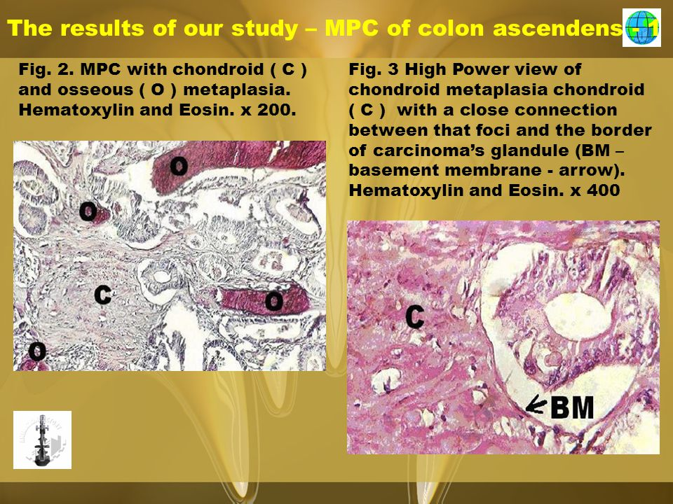 The results of our study – MPC of colon ascendens - 1 Fig. 2. MPC with chondroid ( C ) and osseous ( O ) metaplasia. Hematoxylin and Eosin. x 200. Fig