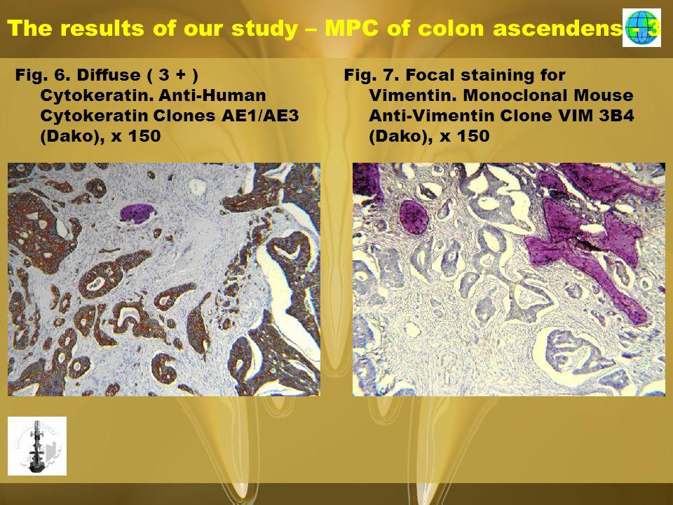 The results of our study – MPC of colon ascendens - 3 Fig. 6. Diffuse ( 3 + ) Cytokeratin. Anti-Human Cytokeratin Clones AE1/AE3 (Dako), x 150 Fig. 7.
