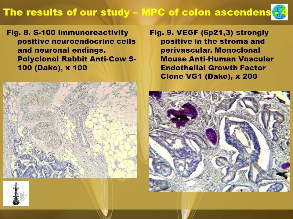 The results of our study – MPC of colon ascendens - 4 Fig.