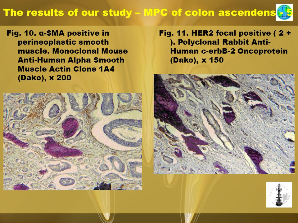 The results of our study – MPC of colon ascendens - 5 Fig.