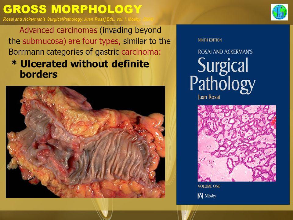 GROSS MORPHOLOGY Rosai and Ackerman's SurgicalPathology, Juan Rosaj Edt., Vol. I, Mosby. (2004) Advanced carcinomas (invading beyond the submucosa) ar