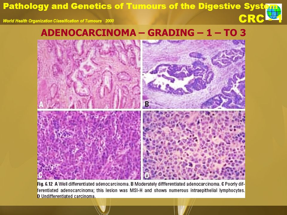 Pathology and Genetics of Tumours of the Digestive System World Health Organization Classification of Tumours 2000 CRC - 1 ADENOCARCINOMA – GRADING – 1 – TO 3